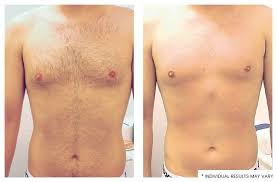 how much does laser hair removal cost on back laser hair removal coolsculpting los angeles clinic botox and