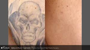 laser tattoo removal a closer look dermatouch rn blog