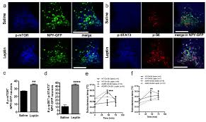 mtorc1 in agrp neurons integrates exteroceptive and interoceptive