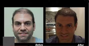 best hairtransplant in the world best hair transplant doctor severe baldness repair