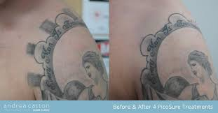 tattoo removal shoulder shoulder tattoo before and after four picosure laser treatments
