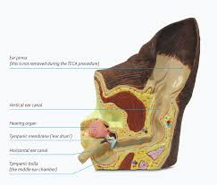 Internal Dog Anatomy Total Ear Canal Ablation Teca In Dogs