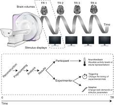 computational approaches to fmri analysis nature neuroscience