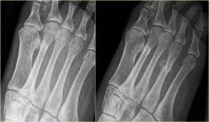 Avascular Necrosis Of The Metatarsal Head The Radiology Assistant Stress Fractures