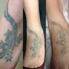 laser tattoo removal u2013 unleash your healing power