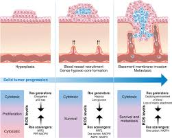 fundamentals of cancer metabolism science advances