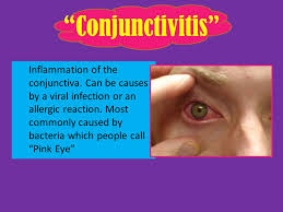 Astigmatism Night Blindness Do Now Research The Following Diseases And Give A Sentence