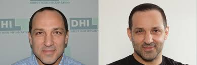 dhi hair transplant reviews hair transplant results before and after photos