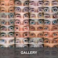 prot e si e auto dalpasso protesi oculari