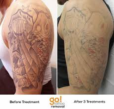 better than 60 fading after 3 laser tattoo removal treatments of