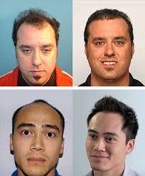 hair plugs for men worcester hair transplant hair loss surgery massachusetts
