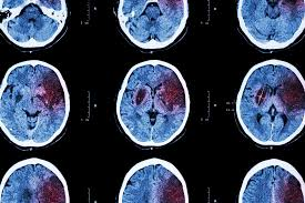 news stroke news from medical news today