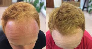 low level light therapy hair michael vaughan laser hair therapy manchester mhr clinic