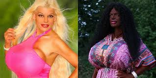 martina big dark skin martina adam white woman gets cosmetic procedure to make herself