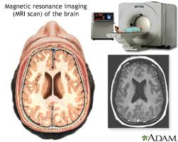 Anxiety disorders   University of Maryland Medical Center University of Maryland Medical Center MRI of the brain