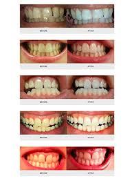 teeth whitening kit with led light auraglow teeth whitening kit led light 35 carbamide peroxide 2