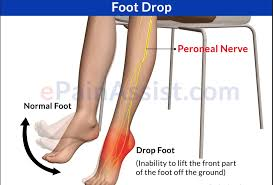 Tibiofibular Ligament Injury Ankle U0026 Foot Pain Physical Therapy In Asheville Nc