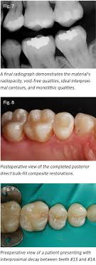 light cure composite filling simplifying everyday direct posterior restorations by jason olitsky