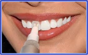 Teeth Whitening Colorado Springs Teeth Whitening Paint Oral U0026 Dental References