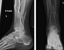 Fibular Avulsion Leg Ankle And Foot Injuries Emergency Medicine Clinics