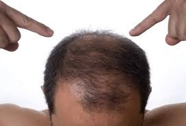 thining hair in men front hair loss causes treatments and prevention