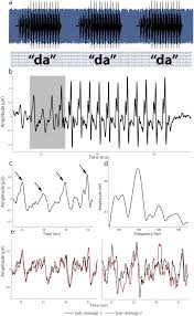 auditory processing in noise a preschool biomarker for literacy