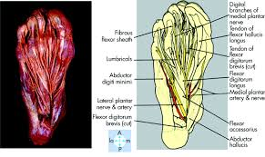 Sole Of The Foot Anatomy Lateral Plantar Nerve Injury Following Steroid Injection For