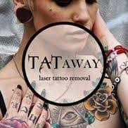 laser tattoo removal by tataway boston in boston ma alignable