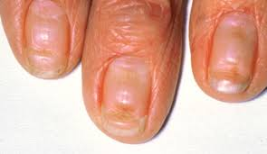 nail abnormalities a visual guide health tools nhs choices