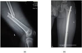 current concepts in paediatric femoral shaft fractures fulltext