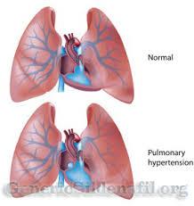 sildenafil for pulmonary hypertension generic viagra