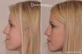 hair styles for protruding chin underbite correction underbite treatment without surgery