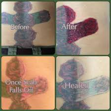 tattoo vanish healing non laser tattoo removal san antonio texas mad makeup