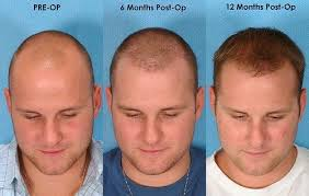 transplant hair second round draft are hair transplants reliable quora