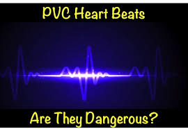 heart racing and light headed pvc heart beats are they dangerous