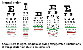 Astigmatism Night Blindness Interview How Bill Johnston Discovered Stereo Vision At The Age