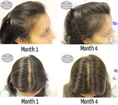 womans hair thinning on sides hair growth success initial 3 months treatment seems to have