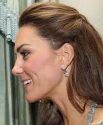 hairstyles that cover face lift scars what is kate middleton s very big facial scar from miami