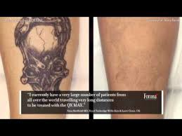 sin city tattoos laser tattoo removal qx max lasers youtube