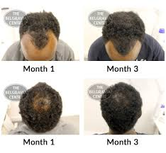 male hair loss treatment london u2013 trendy hairstyles in the usa
