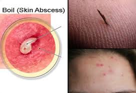 types of ingrown hair boils causes symptoms and home remedies