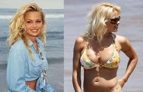 pamela anderson plastic surgery gone bad