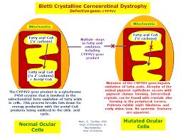 Is Night Blindness Hereditary Bietti Crystalline Corneoretinal Dystrophy Hereditary Ocular