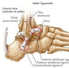 Talus Ligaments Ankle Sprains Usually Occur To The Anterior Talofibular Ligament