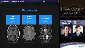 Axial Mri Brain Anatomy Mri Brain Sequences Radiology Video Tutorial Youtube