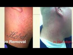 how much does laser tattoo removal cost youtube