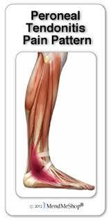 Foot Tendons Anatomy Symptoms U0026 Treatments Of Foot Tendonitis