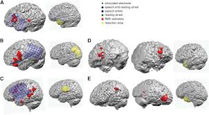 noninvasive language mapping in patients with epilepsy or brain
