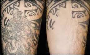 partial tattoo laser removal
