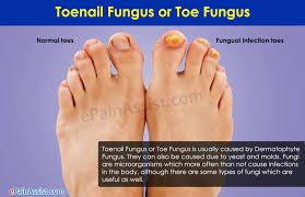 toenail fungus risk factors treatment home remedies complications